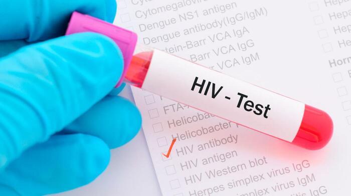 Tỷ lệ nhiễm HIV sau 1 lần quan hệ không an toàn