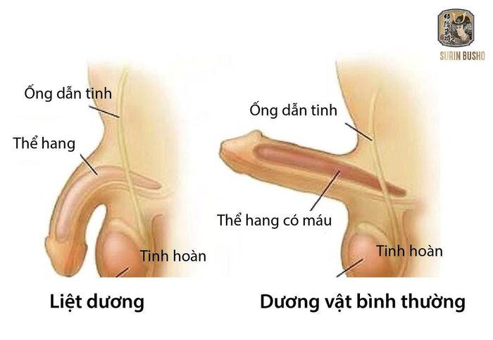 Tuỳ tình trạng mà biểu hiện liệt dương có nhiều khác biệt